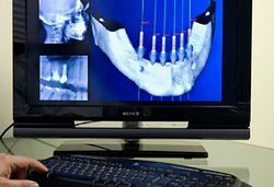 Clínica Dental Ilerdent 4