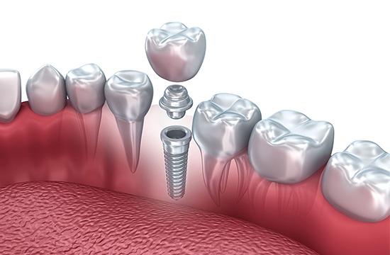 Centros Odontológicos Doctores Sabras CLÍNICAS DENTALES